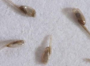 Frequently Asked Lice Questions - Hero Lice Clinics