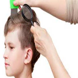 7-Common-Lice-Symptoms